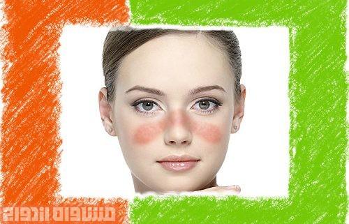بیماری پوستی لوپوس